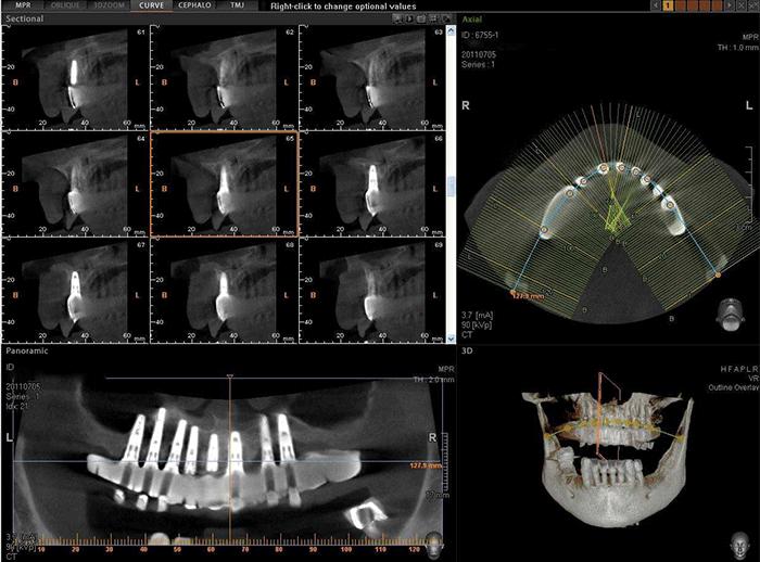رادیوگرافی CBCT دندان