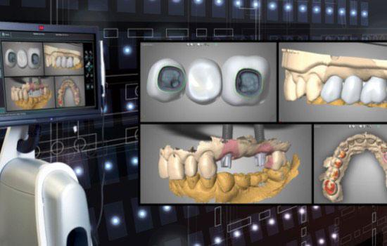 ایمپلنت دندان دیجیتال