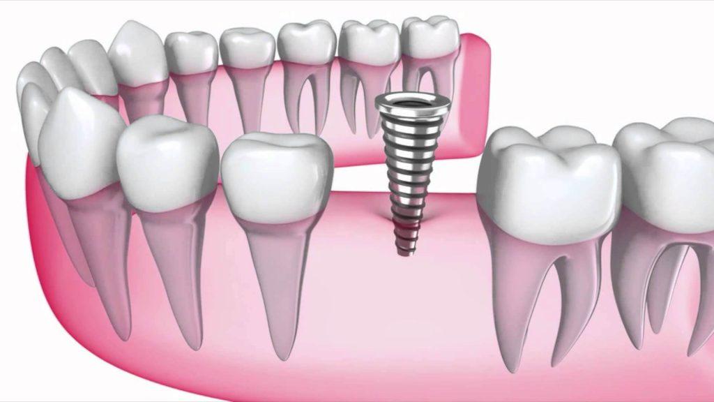 کلینیک ایمپلنت ؛ آزمایشات دندانی و برنامه ریزی درمان