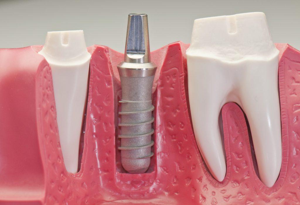 ایمپلنت تهران ؛ عملکرد و نحوه درمان در مرکز کاشت دندان