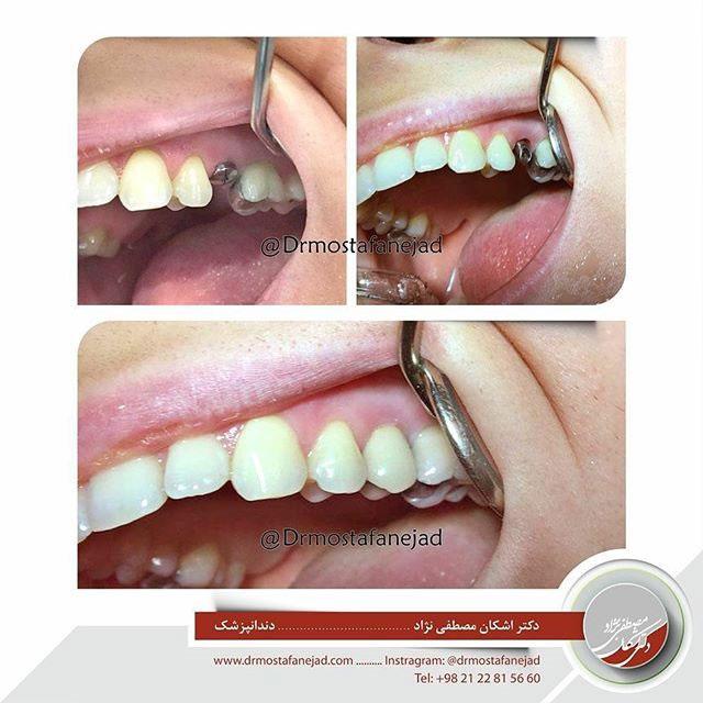 قبل و بعد درمان جایگزینی دندان