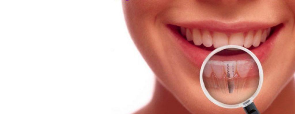 کاربرد انواع ایمپلنت دندان