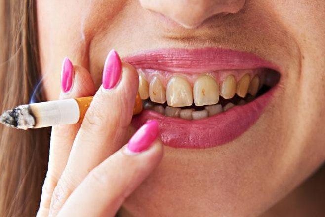 تاثیر سیگار کشیدن بر ایمپلنت دندان