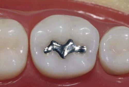 پر کردن دندان با آمالگام سیاه
