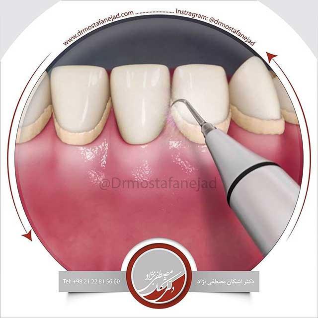 جرم گیری و پلاک دندان