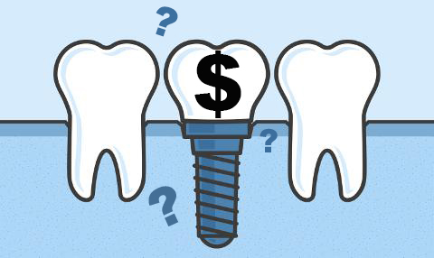 تصویر: https://drmostafanejad.com/wp-content/uploads/2018/12/Dental-Implant-Costs-Post.jpg