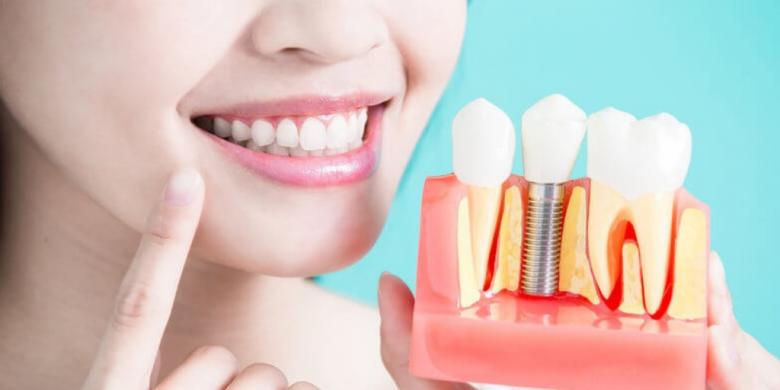 [تصویر:  How-To-Take-Care-Of-Dental-Implant.png]