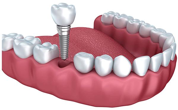 جایگذاری ایمپلنت در دندان